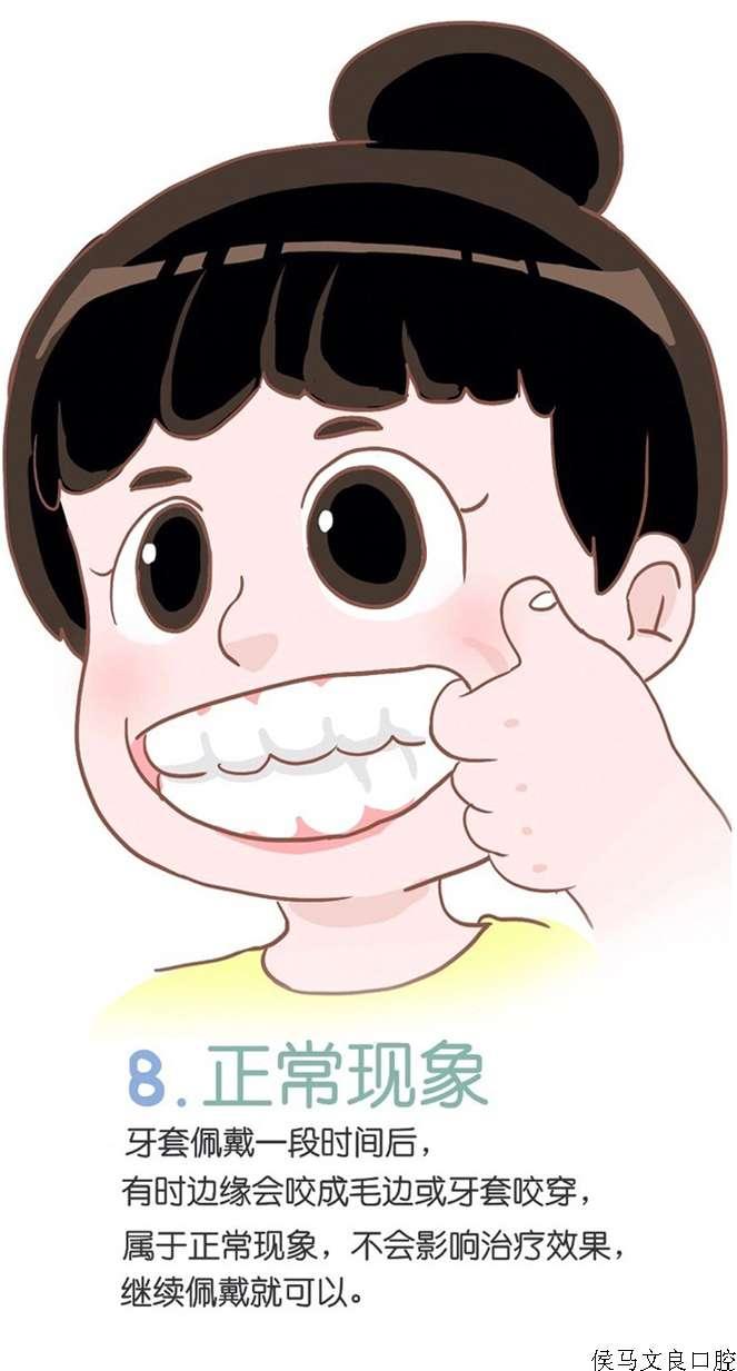 【文良口腔】戴隐形牙套的注意事项【漫画】图片